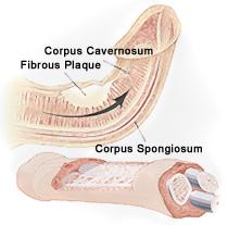 Penis Plaque Diagram